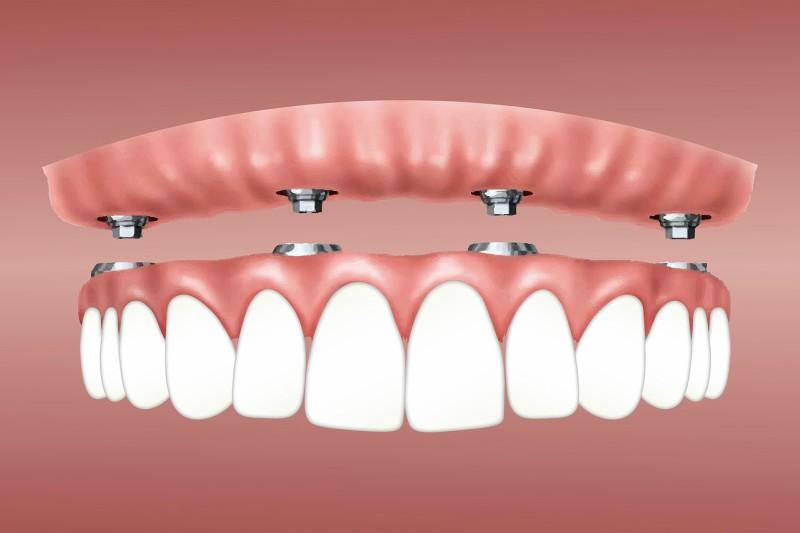 Lijep osmijeh sa zubnim implantantima